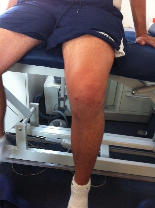 distension de ligamentos rodilla tiempo