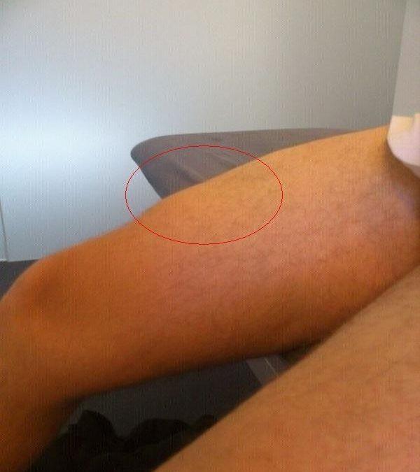 rotura fibrilar brazo tratamiento