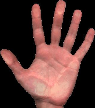 Fisioterapia deportiva: Esguince de dedo de la mano – dedo pulgar