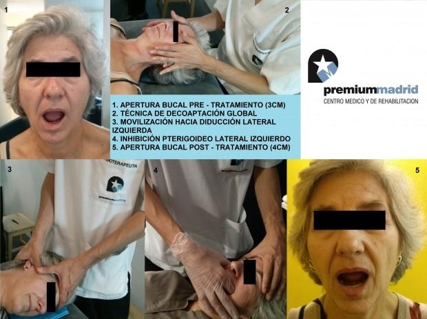 CASO CLÍNICO. FISIOTERAPIA EN LA ATM (Articulación Temporomandibular) CON ALTERACIÓN DEL DISCO