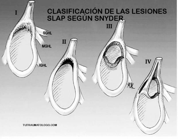 DOLOR DE HOMBRO: LESIÓN SLAP. FISIOTERAPIA Y REHABILITACIÓN