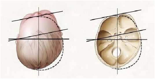 ¿Cómo y cuándo se valora el cráneo de mi bebé?