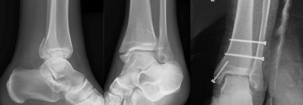 Caso clínico: Fractura de Maisonneuve (tibia y peroné), fase I