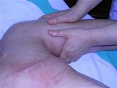Linfedema tras cáncer de mama