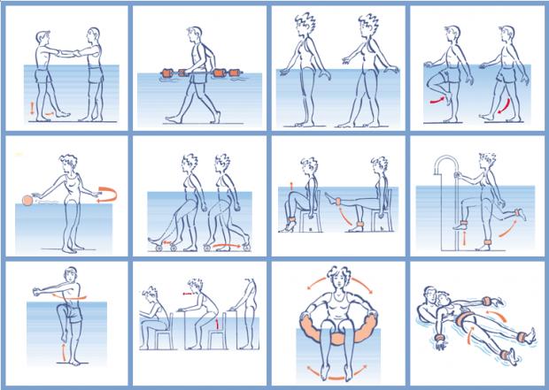 Caso cl nico esclerosis m ltiple e hidroterapia for Ejercicios en la piscina