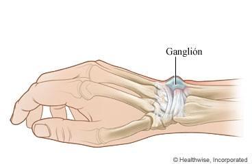 huesos de la mano y muñeca izquierda