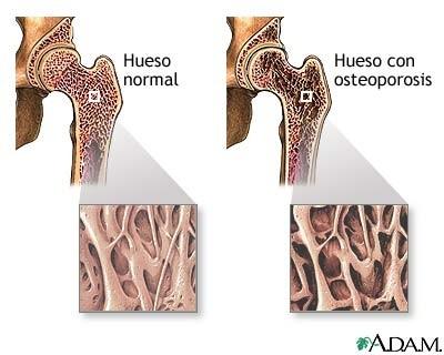 VIVIR CON OSTEOPOROSIS