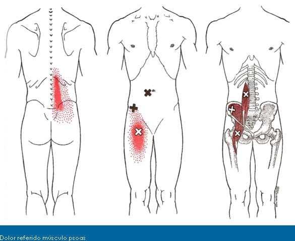 Músculo psoasilíaco: función y acción