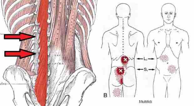 Fisioterapia en la lumbalgia: anatomía de los músculos multífidos lumbares