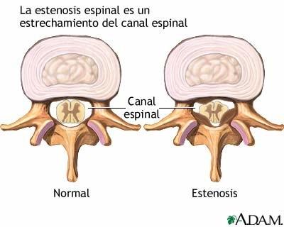 ¿En qué consiste mi diagnóstico de estenosis de canal lumbar?