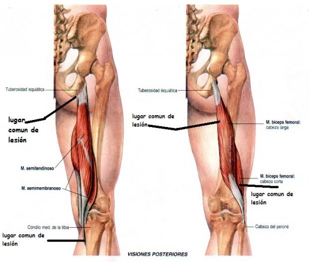 Rotura de músculos isquiosurales (isquiotibiales y bíceps femoral) – Fisioterapia y readaptación deportiva