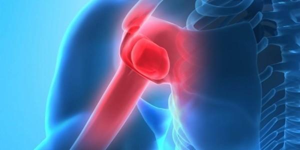 Fisioterapia en el hombro: SÍNDROME DOLOROSO SUBACROMIAL