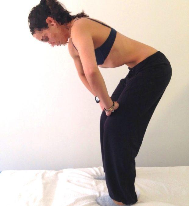 Diástasis abdominal en el embarazo y posparto