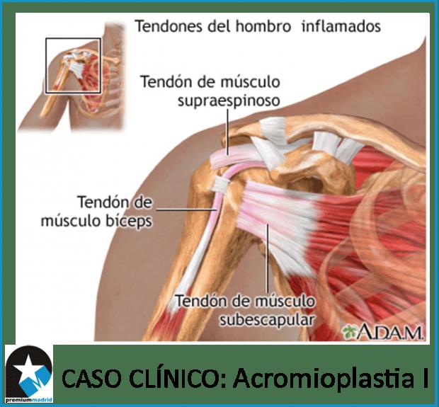 Caso clínico: ACROMIOPLASTIA I