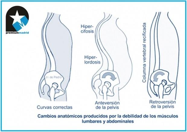 Anatomía y biomecánica de la columna dorsal y lumbar o raquis dorsal y lumbar