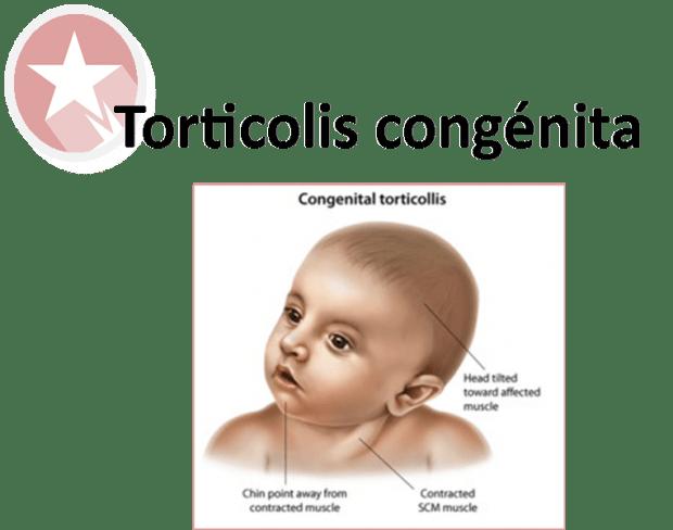 TORTICOLIS CONGENITA: INCIDENCIA Y TRATAMIENTO PRECOZ