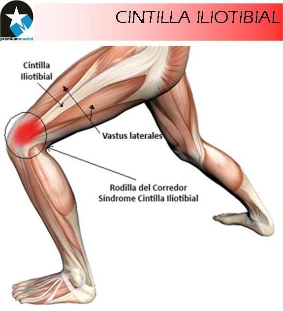 Rodilla del corredor: Síndrome de la Cintilla Iliotibial (Caso biomecánico)