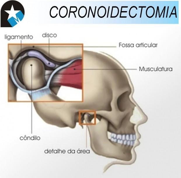Caso Clínico CORONOIDECTOMIA.