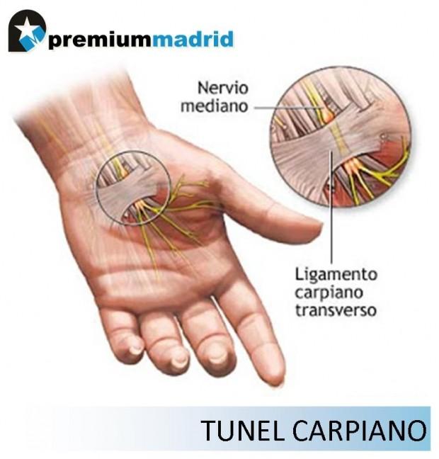 Síndrome del Túnel Carpiano en Ciclistas