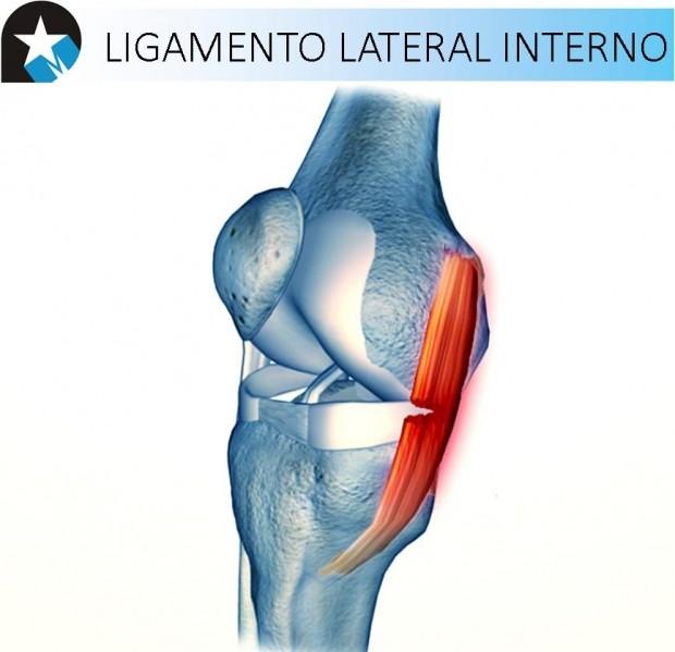 Recuperación de ligamento lateral interno