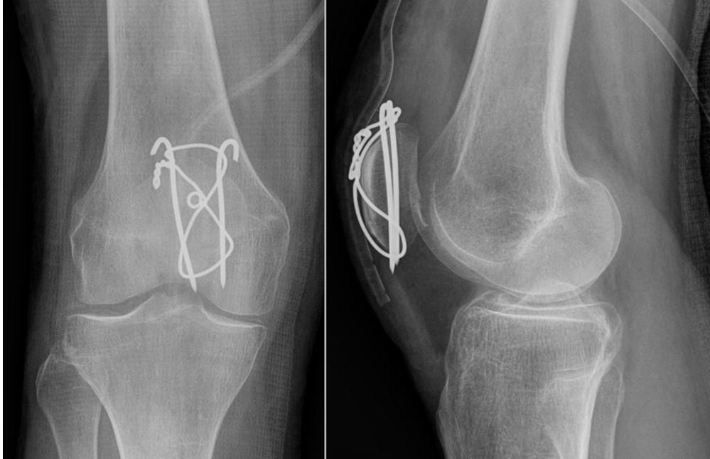 Fracturas de Rótula: causas, diagnóstico, tratamiento