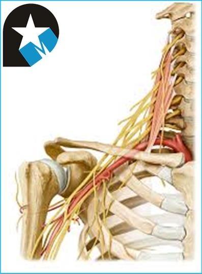 Lesión del nervio axilar