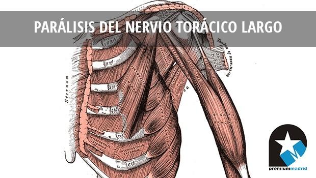 Dolor de hombro/cuello y discinesis escapular: parálisis del nervio torácico largo