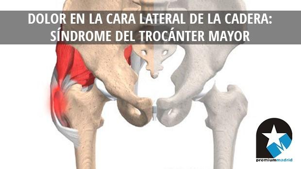 Dolor en la cara lateral de la cadera: Síndrome del trocánter mayor