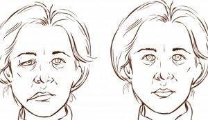 Parálisis Facial de Bell o Parálisis Facial Periférica. Tratamiento y Ejercicios