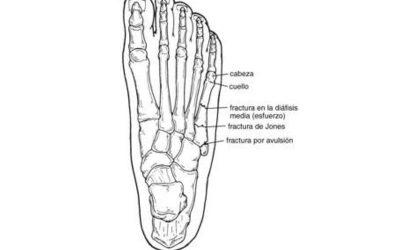 fractura-quinto-metatarsiano