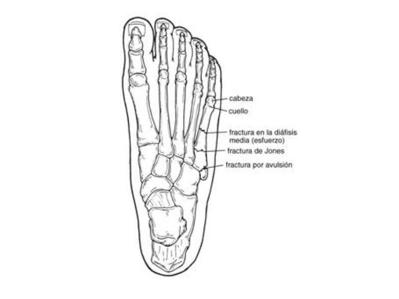 Fisioterapia deportiva: fracturas del quinto metatarsiano en futbolistas