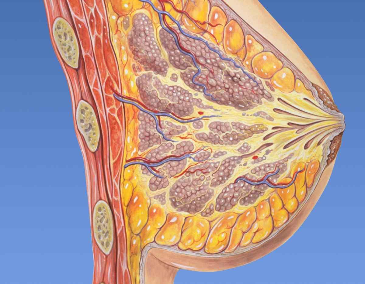 Mastitis fisioterapia drenaje linfático