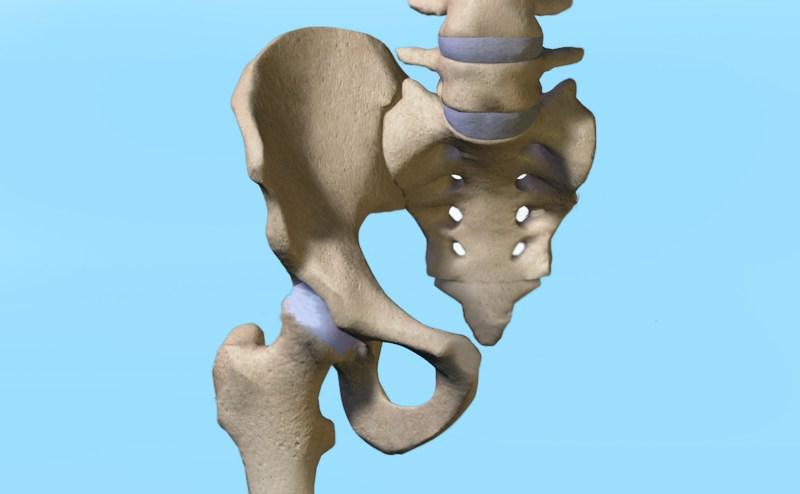 Dolor referido a la articulación sacroiliaca
