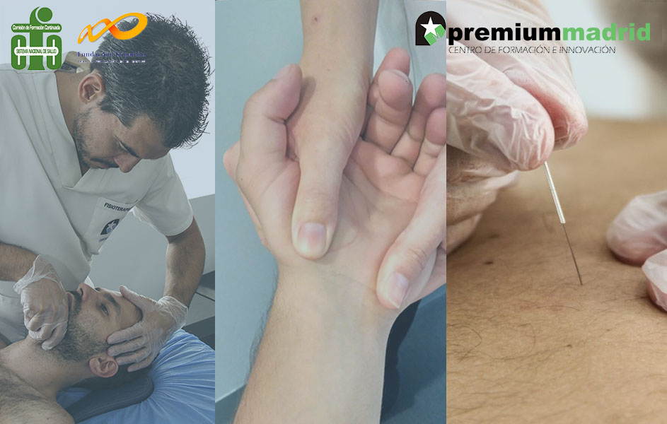 Taller gratuito: Fisioterapia neuromiofascial y punción seca