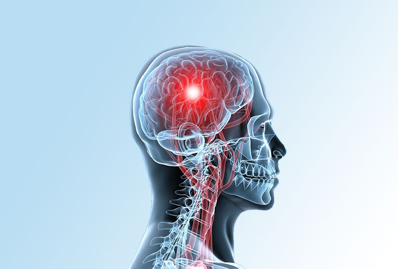 Ictus o accidente cerebrovascular