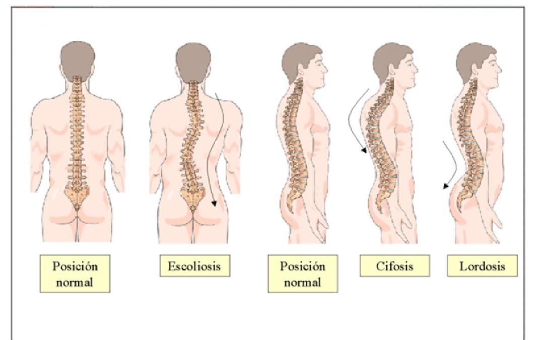 Enfermedades causadas por mala higiene postural