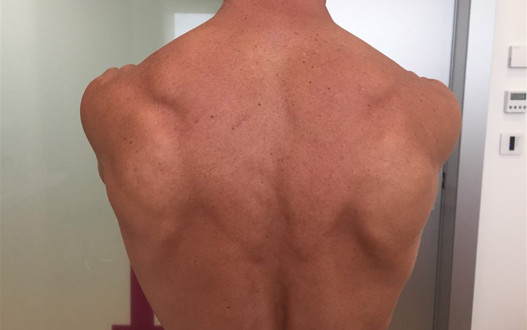 Tratamiento de fisioterapia en el síndrome de Parsonage-Turner (Neuritis Braquial)