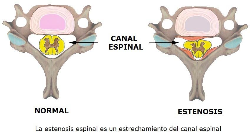 Abordaje de la fisioterapia en la estenosis del canal lumbar