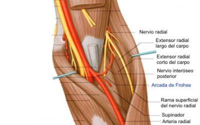 Epicondilalgia lateral y nervio radial