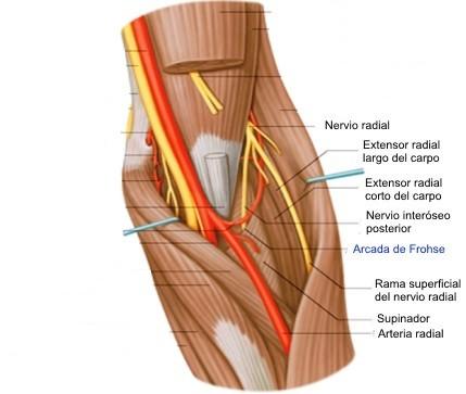 Epicondilalgia lateral y su relación con el nervio radial
