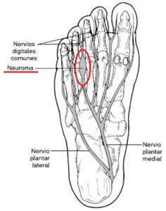 Neuroma de Morton: causas, factores de riesgo y tratamientos