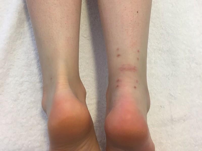 ¿Qué es la rotura del tendón de Aquiles y por qué se produce?