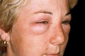 Edema facial tras fascitis necrotizante facial