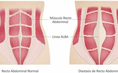 Falsos mitos diástasis abdominal