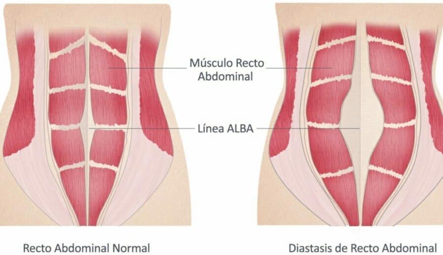 Falsos mitos de la diástasis abdominal