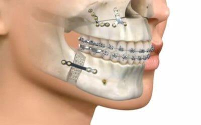 Cirugía ortognática ¿Cuáles son sus secuelas?