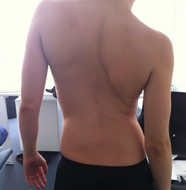 Escoliosis idiopática y fisioterapia