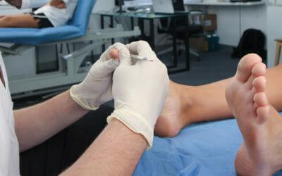 Infección por hongos en las uñas: Onicomicosis