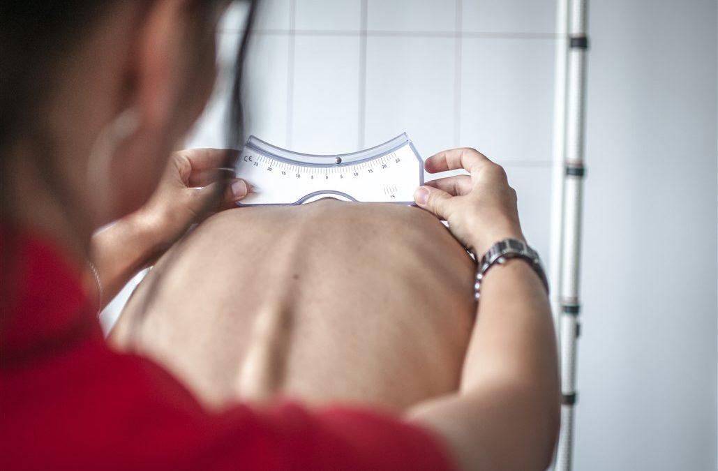 ¿Fisioterapia en la escoliosis idiopática?