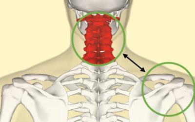 Tendinopatía del manguito rotador y su relación con la columna cervical